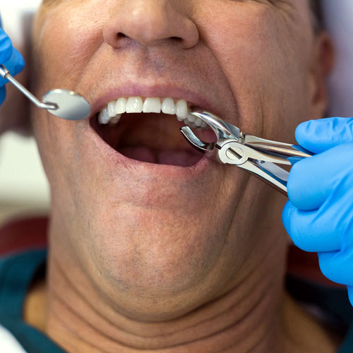 tooth removal in New Braunfels